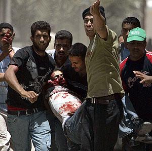 20061123054238-00-palestinos-heridos-archivo.jpg